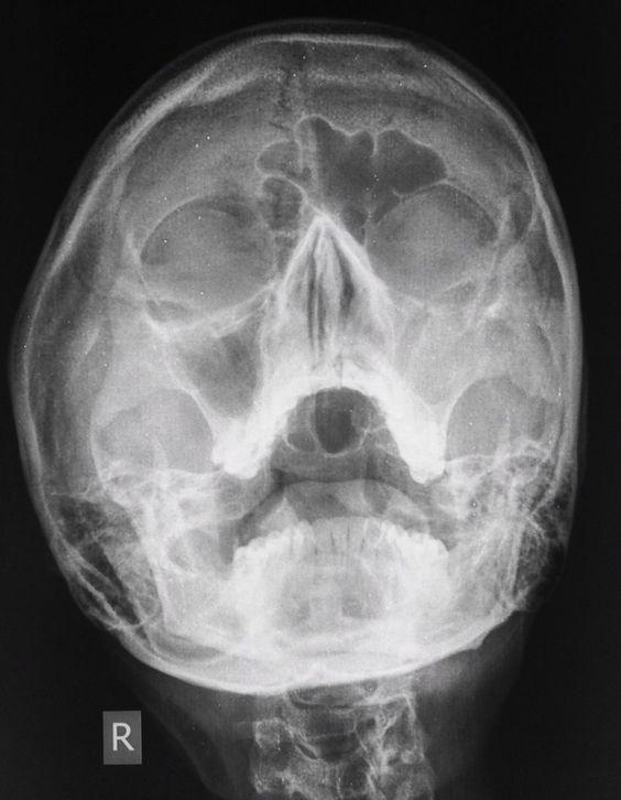 Maxillary sinusitis | Radiology Case | Radiopaedia.org