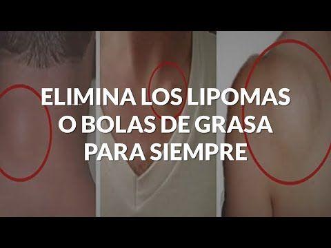 Elimina Los Lipomas O Bolas De Grasa De Forma Definitiva Health Health Fitness Contour Makeup