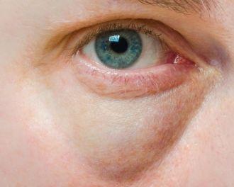 ¿Sufres de bolsas en los ojos? A veces no sólo aparecen por cansancio. Entérate de otras causas aquí: http://www.saludactual.cl/oftalmologia/bolsas-en-los-ojos.php