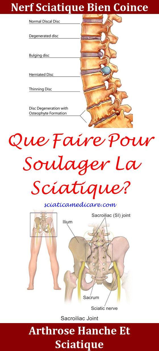 Comment Soulager Douleur Sacrum : comment, soulager, douleur, sacrum, Sciatique