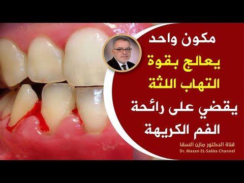 ضعها على اللثة يوميا النتيجة سوف تبهرك لثة وردية دون التهاب تعالج رائحة الفم الكريهة وامراض اللثة Youtube Ugss Dentistry Round Sunglasses