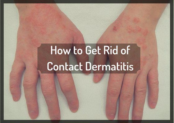 How To Get Rid Of Contact Dermatitis On Hands