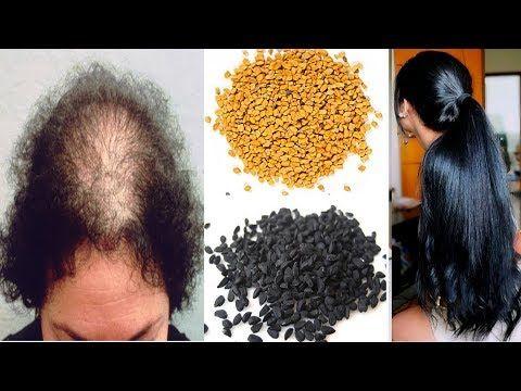 وصفة سحرية اليكم وصفة رائعة و فعالة في علاج الصلع وعلاج تساقط الشعر وعلاج فراغات الشعر من الامام بالخصوص Diy Hair Care Hair Care Oils Miracle Hair Treatment