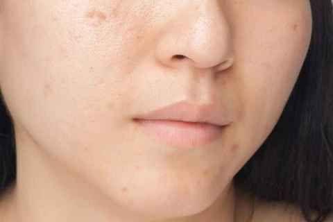 Tips Menghilangkan Bopeng Di Wajah