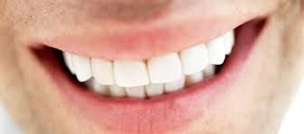 Resultado de imagen para sonrisa hombre dental