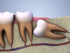 L'escroquerie des dents de sagesse et pourquoi vous avez besoin de vos dents de…