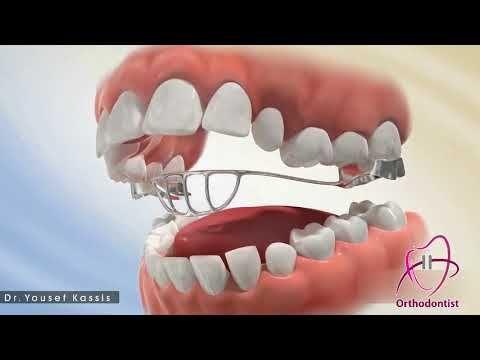 دكتور يوسف قصيص جهاز كبح اللسان تقويم الأسنان Youtube Lokai Bracelet Live Lokai Bracelet Convenience Store Products