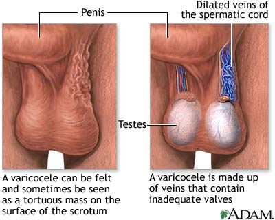 Varicocele- dilation of pampiniform venous complex of the spermatic cord the varicocele forms a soft, elastic swelling that can cause pain. More painful when standing affect left spermatic cord more often than right