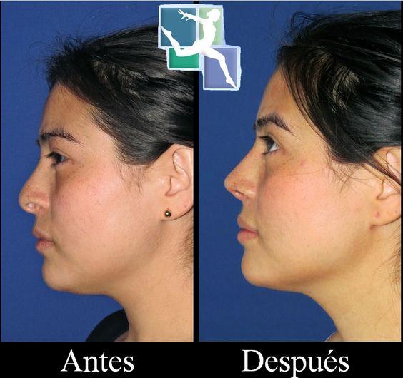 Cirugia de Nariz Corrigiendo la Punta Nasal - Médicos Líderes #rinoplastia #cirugiaplastica #rinoplastiabogota