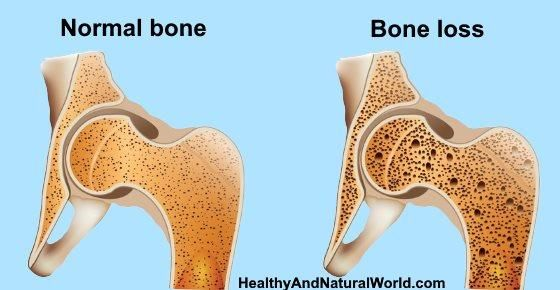 28++ How does low tsh affect osteoporosis viral