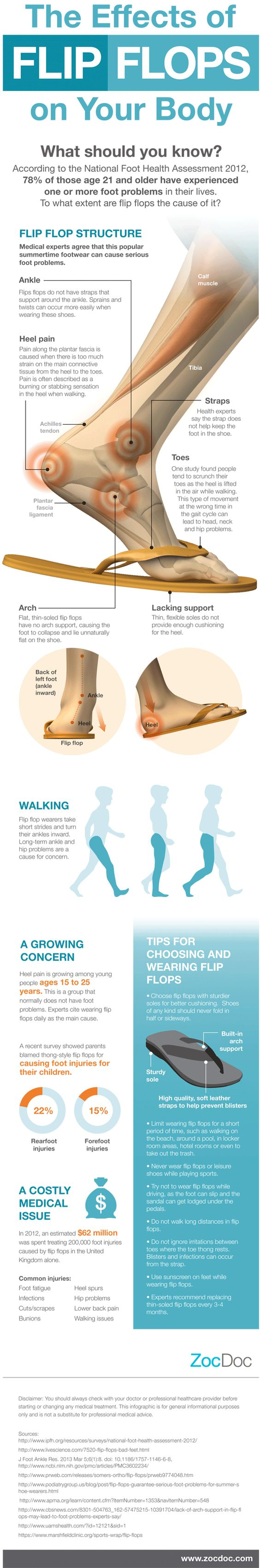Health Effects of Flip Flops On Your Feet #Infographics