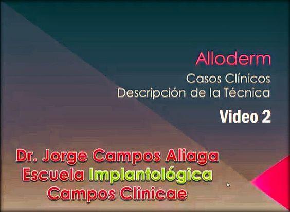 Videoconferencia: Alloderm - Casos Clínicos / Dr. Jorge Campos Aliaga (Video 2) | Odonto-TV