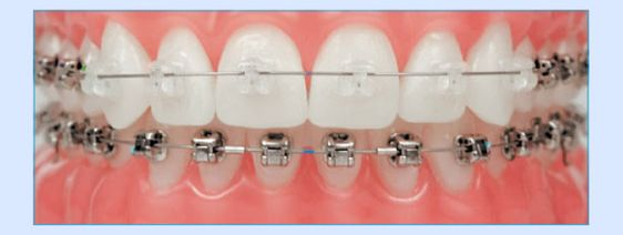 What are Virtually Invisible Braces? Better smiles with transparent braces.