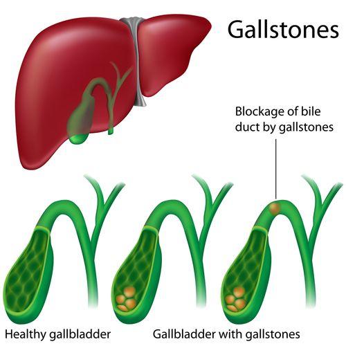 Symptoms of Gallstones
