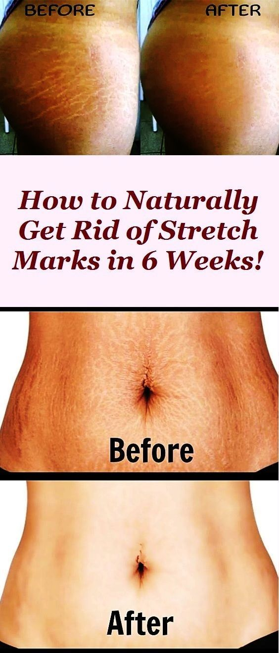 Tips For Maintaining The Health Of Your Skin Stretch Marks Bio
