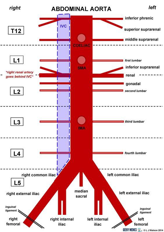 Abdominal Aorta : Triple AAA (Aneurysm of Aorta in this area)