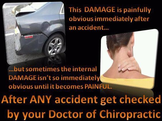 Don't even think twice about not going.  This is a must if you want to reduce the chances of permanent damage.  Even if you feel fine, symptoms of this type of trauma to the spine will creep up on you.  Studies show that it only takes an impact of 5 mph to cause problems. Remember, whatever force your car sustains, you absorb as well.