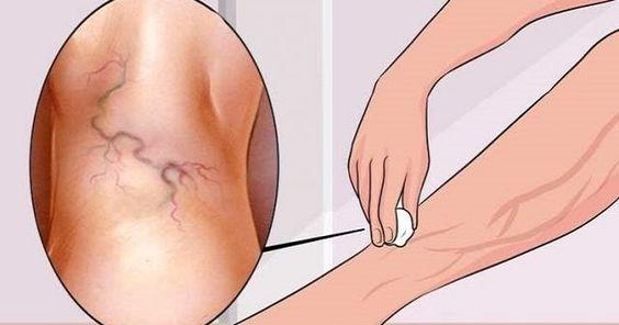 Unas de las pesadillas y cosas que las mujeres detestan son las varices, ya que estas les dan una apariencia antiestética a las pie...