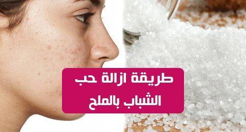 ازالة حب الشباب بالملح يستخدم الملح في العديد من الوصفات الطبيعية المستخدمة لعلاج مشاكل البشرة والجسم بشكل عام لأنه يحتوي على العديد من المواد وال Stud Earrings