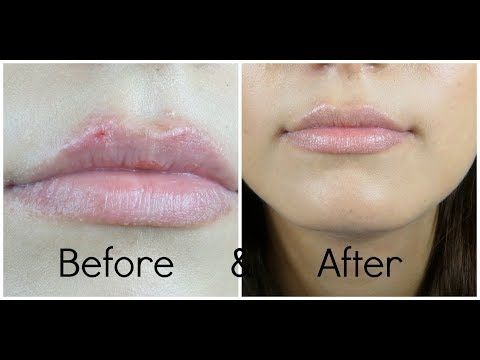 ee073b3d226e3314197aaad9749a8786 - How To Get Rid Of Cold Sores Before They Appear