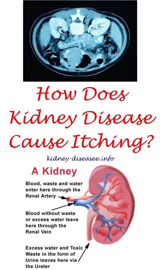 Pin On Kidney Disease Benefits Of