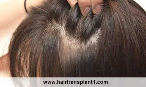 افضل مركز زراعة شعر بتركيا احصل الآن علي ارخص العروض التي تقدم لكم علي مستوي جميع انحاء العالم فيعتبر المركز التركي من اكب Hair Styles Beauty Long Hair Styles