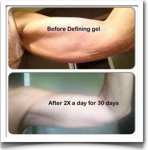 "I am looking for FOUR people that have UNWANTED cellulite, stretch marks or varicose veins? Or that would like to revitalize old tattoos?  Defining Gel aka ""Liquid Gold"" is an amazing all natural gel that you apply to any trouble area up to 2x's/daily!  Defining gel works on sunburns Skin break outs like psoriasis Scars Tattoos Cellulite Varicose veins Stretch marks Tightening/firming the skin And more  Call me to order yours THIS WEEK! 918.928.WRAP (9727) www.WrapWithTheBest.com…"