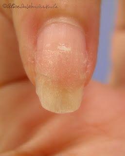 How to repair a broken nail  Alice in WonderNails: Come riparare un'unghia rotta