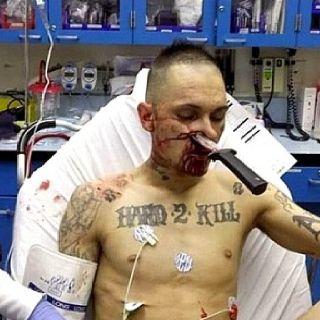 Hard To Kill Knife In Face