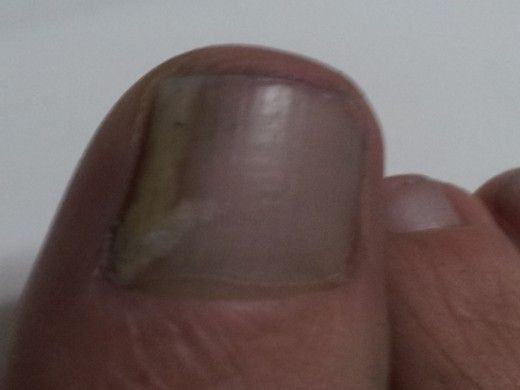 نبض المعلومات استخدام العلاج الطبيعي لعلاج الفطريات أظافر القدمي Toenail Fungus Cure Toenail Fungus Remedies Foot Fungus Treatment