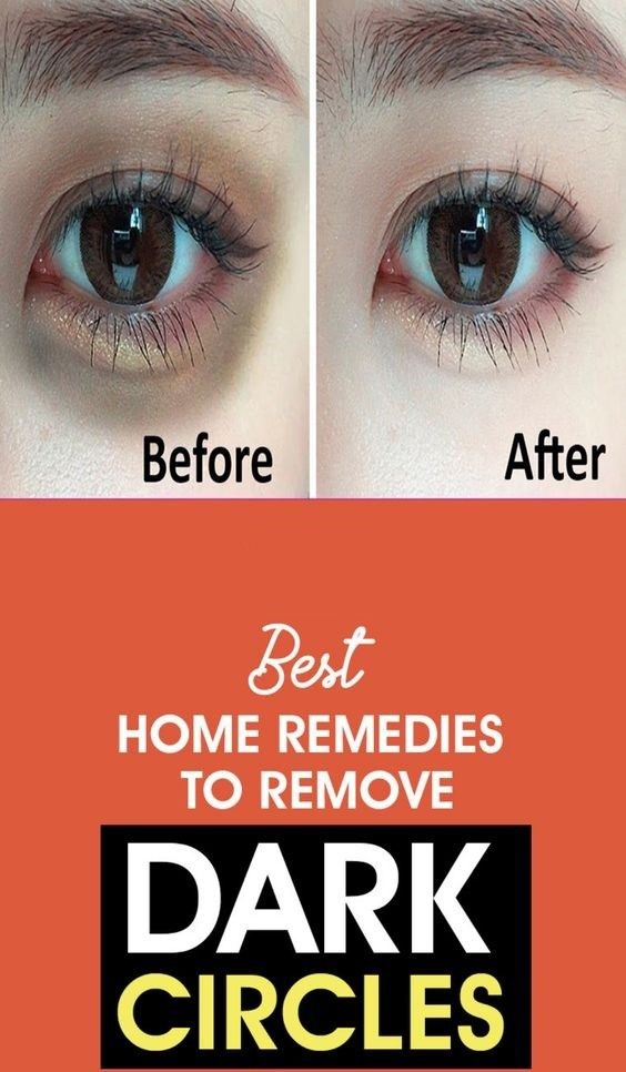 How To Get Rid Of Red Rings Around Eyes