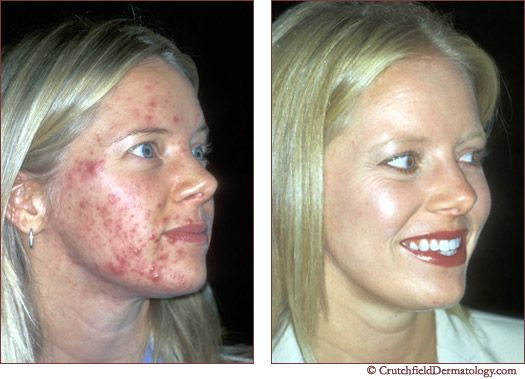 17 Best images about Laser Treatment For Acne | Laser hair