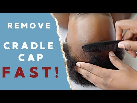 How To Get Rid Of Cradle Cap Naturally Step By Step Cradle Cap Removal Tutorial Youtube Cradle Cap Coconut Oil Baby Cradle Cap Remedies