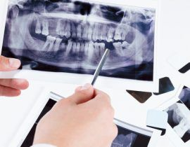 Discover why getting dental x-rays are important especially when it comes to checking your oral health as well as when it comes to assessing dental issues.