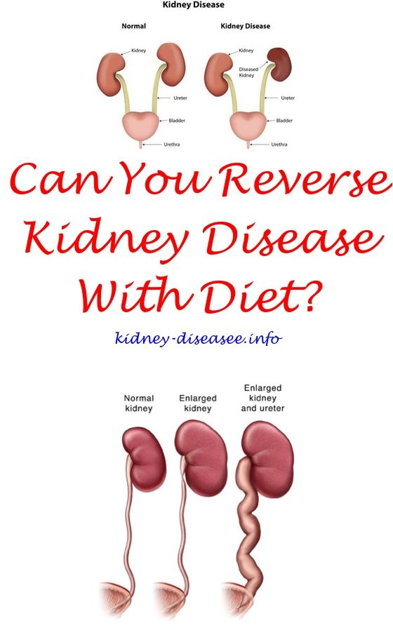 Best Diet For Kidney Disease What Causes Kidney Disease What Causes Kidney Failure Kidney Dialysis