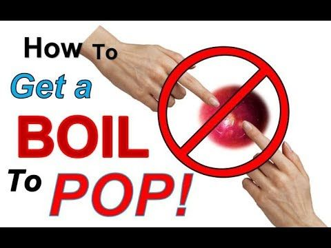 ef4729f78f237da7c1b69d108910f188 - How To Get A Boil To Pop On Its Own