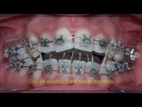 Caso Clinico Ortodoncia Youtube Ortodoncia Odontologo Odontología