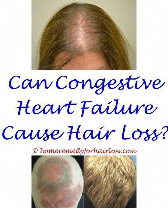 Hair Loss Due To Vitamin D Deficiency Sulfates And Hair Loss Hair Loss Control Medicine Does Wearing A Woo Hair Loss Remedies Womens Hairstyles Bouffant Hair