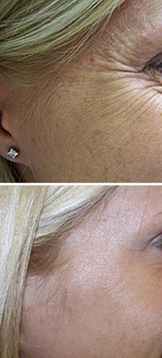Before and After using Botox for crow's feet: