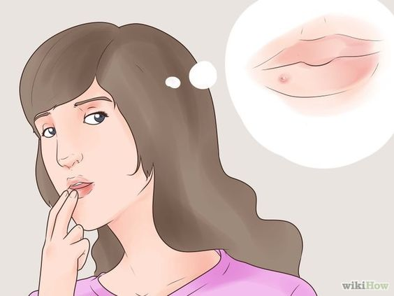 Tell if You Have a Cold Sore Step 1 Version 2.jpg
