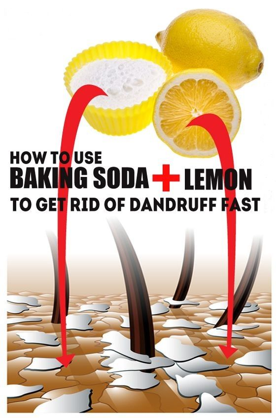 How To Use Baking Soda And Lemon Of Dandruff Fast Baking Soda And Lemon Baking Soda For Hair Home Remedies For Dandruff