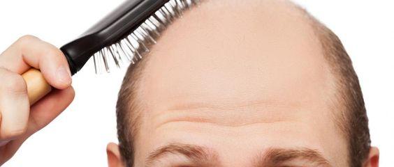 Calvitie : comment faire repousser les cheveux