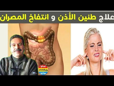 ما سبب طنين الأذن المستمر مرض كرون و المصران المنفوخ و النحافة و الحبوب مع الدكتور جمال الصقلي Youtube Sleep Eye Mask Beauty Mask