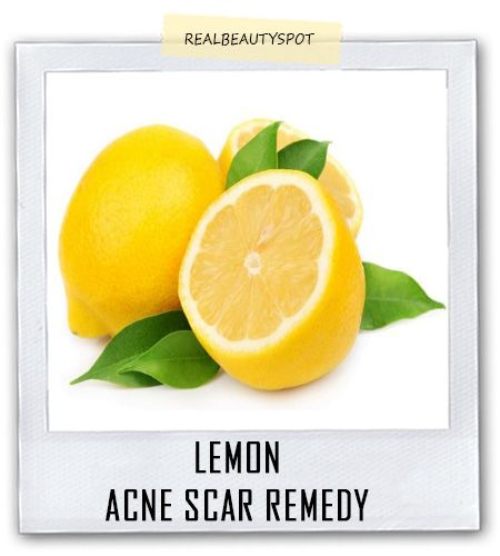 Natural home remedies for acne scars : ♥ Real Beauty Spot ♥