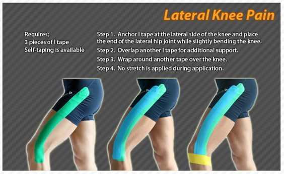 Knee pain and pain d 39 epices on pinterest for Exterior knee pain