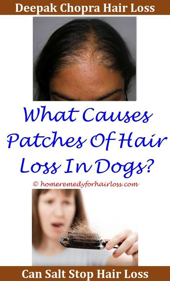 What Causes Babies Hair To Fall Out - Hair Trends 2020 ...