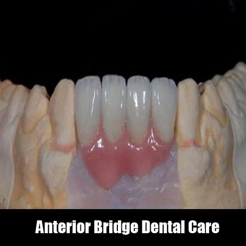 Anterior Bridge Dental Care Is Another Best Treatment For Missing Teethes Its A Non Removable Appliance Which Perfect
