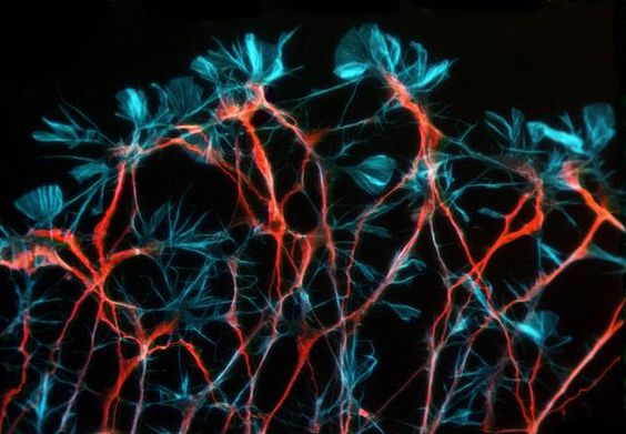 Dorsal root ganglion neurons of an embryonic rat | 2003 Photomicrography Competition | Nikon Small World