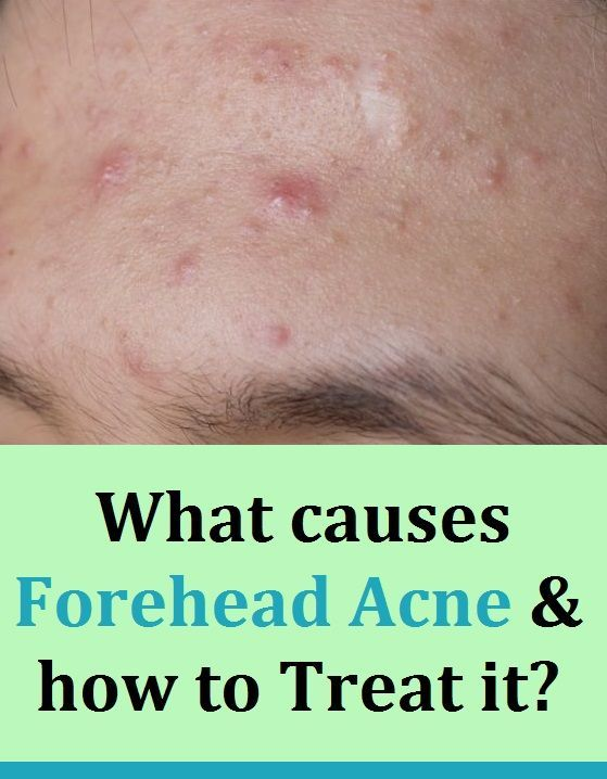 What Causes Forehead Acne And How To Treat It In 2020 Forehead Acne Diy Acne Treatment Acne Treatment