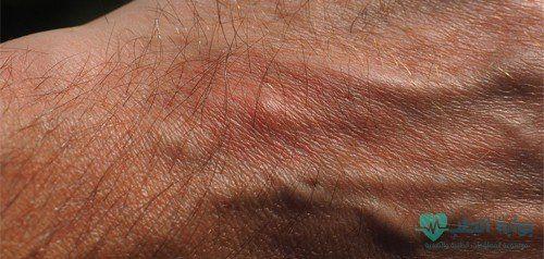 الحكة الشديدة المستمرة في الجسم تعرف علي الأسباب والعلاج الاحمرار الحكة